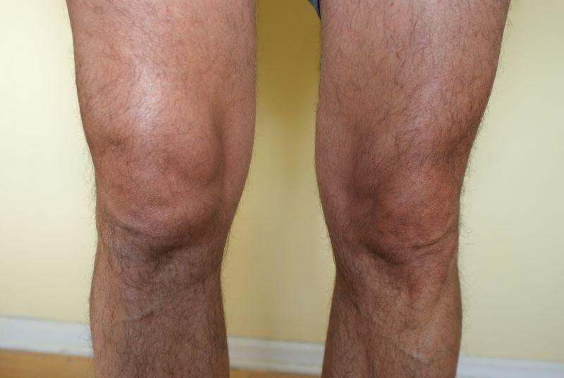 Causes for Hip Pain  Arthritis Foundation