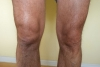 Swollen Knee by Knotty in Faces